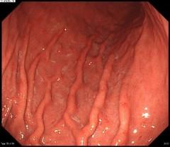 萎縮性胃炎びまん性発赤
