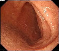 十二指腸球部正常