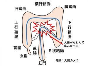 痛い 結腸 s 字